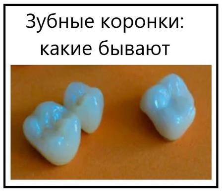 Зубные коронки какие бывают